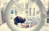 Żółtaczka fizjologiczna u noworodka