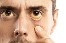WZW A – przyczyny, objawy, leczenie wirusowego zapalenia wątroby typu A. Jak można zarazić się wirusem HAV?