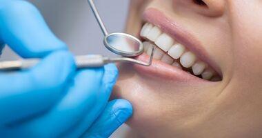 Wybielanie zębów – jak i dlaczego warto, a dlaczego nie?