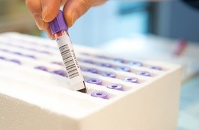 Brytyjczycy zapowiadają testy kliniczne sztucznej krwi