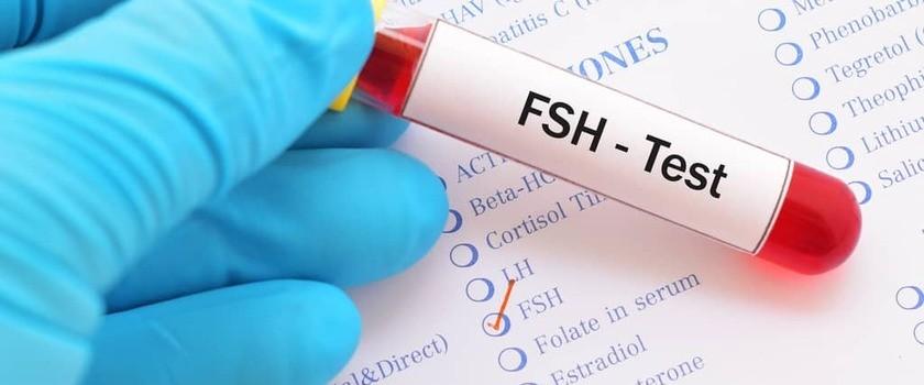 FSH – badanie, norma, za wysokie, za niskie. Czy poziom hormonu folikulotropowego wpływa na płodność i rozwój PCOS?