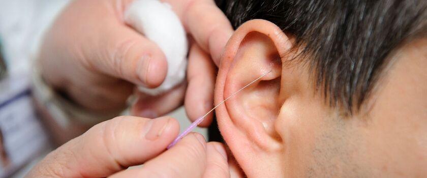 Akupresura ucha w przypadkach nagłych