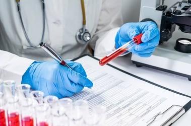 Aminogram – badanie poziomu aminokwasów