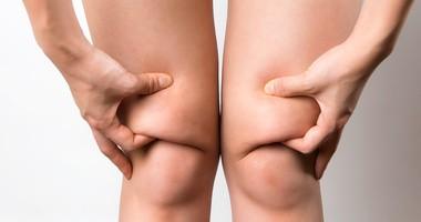 Lipodemia – przyczyny, objawy, leczenie obrzęku tłuszczowego