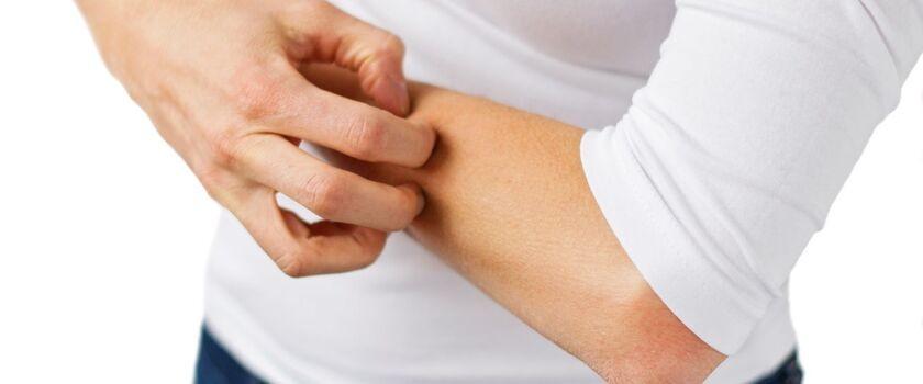 Atopowe zapalenie skóry - długotrwała dolegliwość