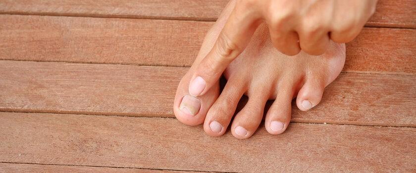 Grzybica paznokci – przyczyny, objawy, leki bez recepty. Domowe sposoby na grzybicę paznokci