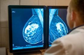 Mammografia pomaga wykryć problemy z sercem