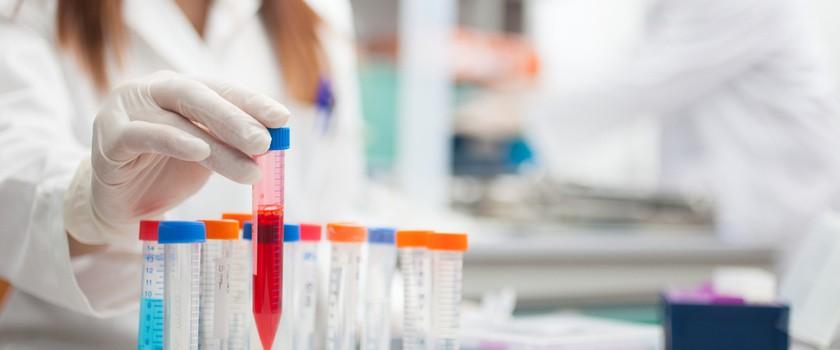 W jaki sposób sztuczna inteligencja może wspomagać leczenie raka?