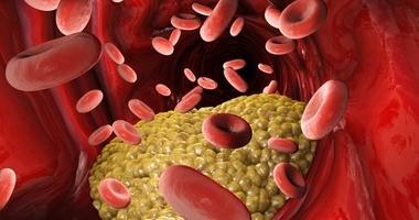 Hipercholesterolemia – przyczyny, objawy i leczenie. Czy jest groźna?