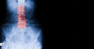 Lordoza lędźwiowa – przyczyny, objawy, leczenie hiperlordozy i lordozy lędźwiowej spłyconej