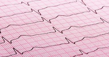 Tachykardia – przyczyny, objawy i leczenie częstoskurczu