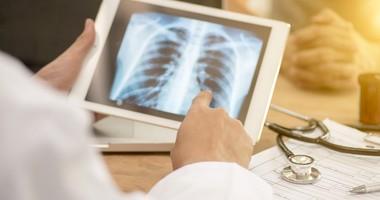 Międzybłoniak opłucnej – rodzaje, objawy, diagnostyka, leczenie i rokowania