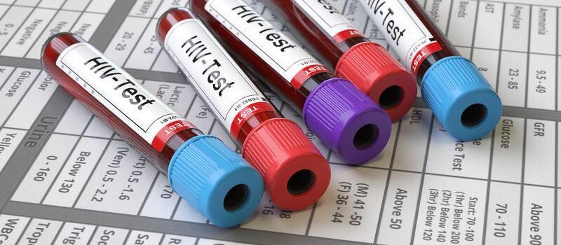 Genetyczna terapia HIV wchodzi w fazę badań klinicznych