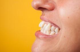 Wady zgryzu u dzieci i dorosłych – rodzaje, przyczyny, leczenie. Zakładanie aparatu ortodontycznego krok po kroku