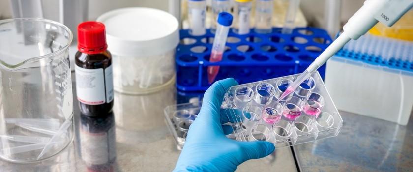 Naukowcy odkryli potencjalną przyczynę odporności na chemioterapię