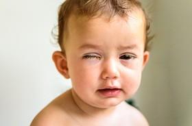 Zapalenie spojówek u dzieci – przyczyny, objawy, leczenie