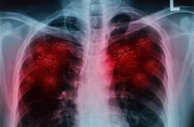 Powikłania COVID-19. Jak koronawirus niszczy nasze płuca?