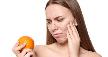 Dieta na trądzik – jakie produkty jeść, a które wykluczyć?