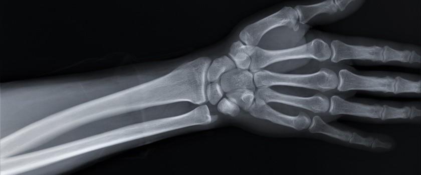 Kość łódeczkowata – objawy, leczenie i rehabilitacja w złamaniach kości łódeczkowatej