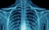 Ból kręgosłupa piersiowego – przyczyny, diagnostyka, leczenie, ćwiczenia na odcinek piersiowy kręgosłupa