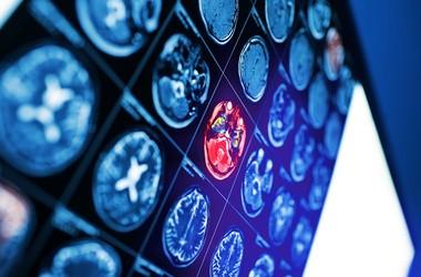 Udar niedokrwienny mózgu – przyczyny, objawy, leczenie zawału mózgu. Skutki i rokowania. Pierwsza pomoc przy udarze