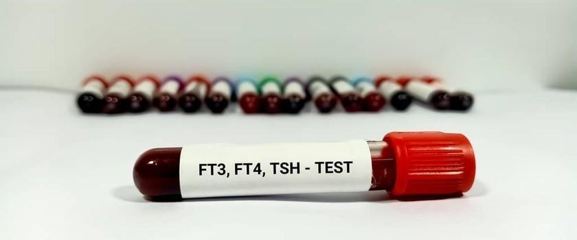 FT3 – badanie, za wysokie, poniżej normy. Jakie są wskazania do oznaczenia i jak interpretrować wyniki?