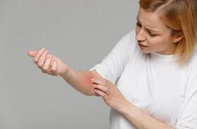 Problemy skórne a COVID-19 – wysypki, rumień, wypadanie włosów