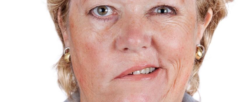 Porażenie nerwu twarzowego – przyczyny, objawy i leczenie porażenia Bella