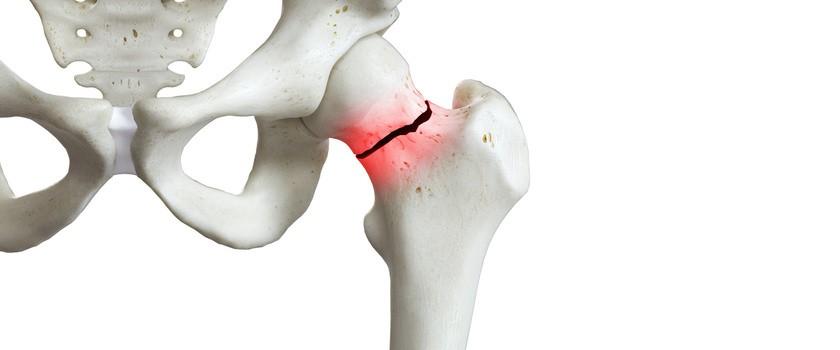 Zwyrodnienie stawu biodrowego (koksartroza) – przyczyny, objawy, leczenie, ćwiczenia