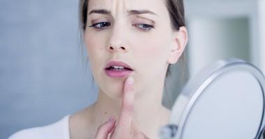Opryszczka w ciąży – objawy, przyczyny i leczenie