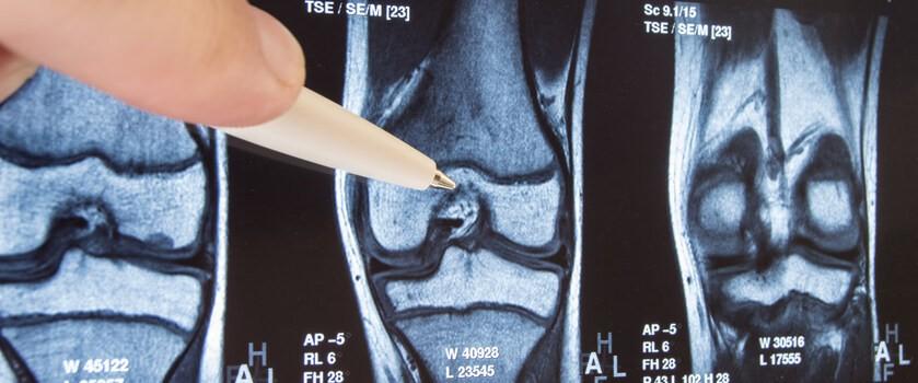 Endoproteza kolana – wskazania, przebieg zabiegu, rehabilitacja po endoprotezoplastyce stawu kolanowego