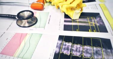 Na czym polega badanie densytometryczne (gęstości kości)?