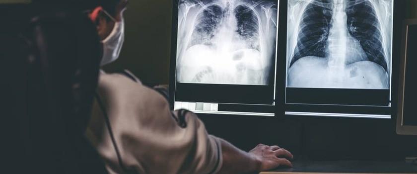 Palenie papierosów może być przyczyną problemów z erekcją (wideo)