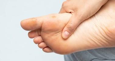 Domowe sposoby na odciski – czyli jak pozbyć się piekącego problemu stóp?