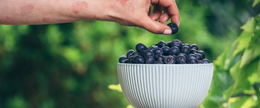 Dieta przy łuszczycy – jak powinna wyglądać?