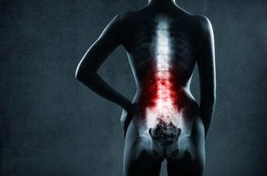 Wypadnięcie dysku – przyczyny, objawy, leczenie, ćwiczenia