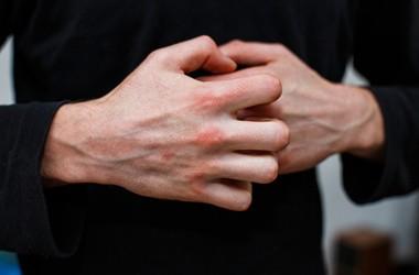 Łojotokowe zapalenie skóry – leczenie i dieta