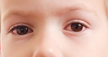 Zapalenie spojówek u dzieci — przyczyny, objawy, leczenie