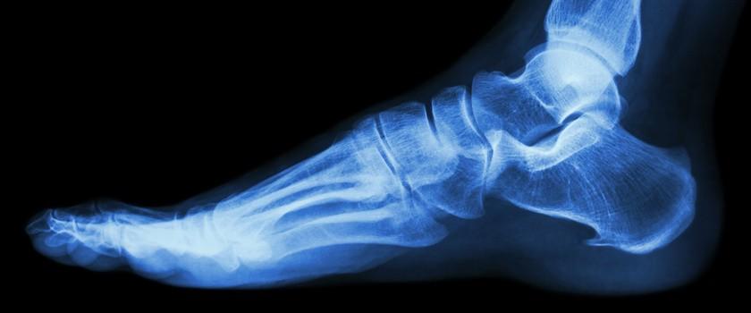 Złamanie zmęczeniowe – przyczyny, objawy, leczenie, rehabilitacja w złamaniach przeciążeniowych kości