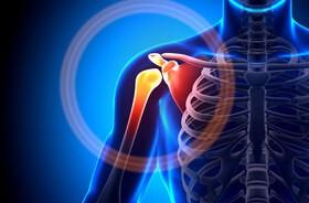 Ból barku – przyczyny, diagnostyka, leczenie. Ćwiczenia na bolący bark