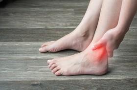 Opuchnięte kostki u nóg – przyczyny i domowe sposoby na opuchliznę kostek