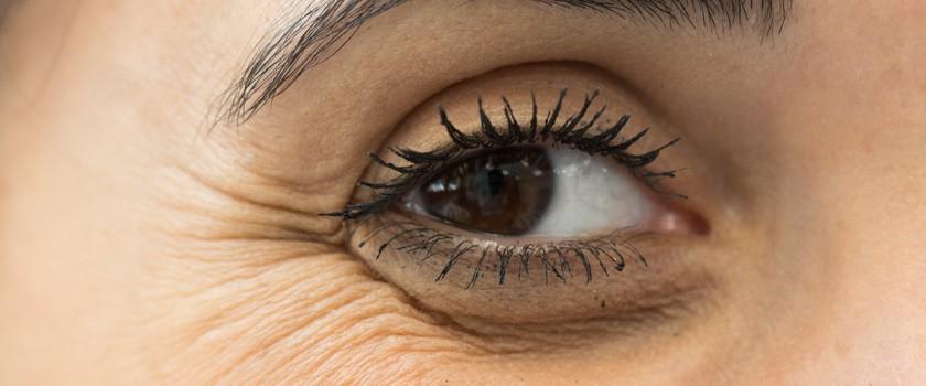 Kurze łapki – jak się ich pozbyć? Kremy przeciwzmarszczkowe pod oczy i domowe sposoby na zlikwidowanie kurzych łapek