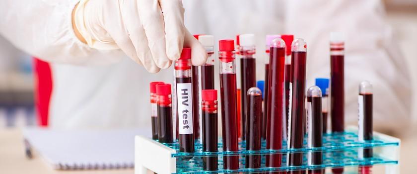 Druga osoba na świecie skutecznie wyleczona z HIV
