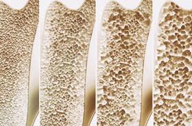 Osteoporoza – przyczyny, objawy, badania, leczenie, rehabilitacja, zapobieganie zmianom osteoporotycznym