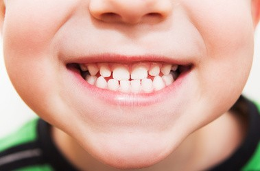 Lakowanie zębów u dzieci – czy jest konieczne?