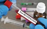 Pląsawica Huntingtona – przyczyny, objawy, leczenie, rokowania w chorobie Huntingtona
