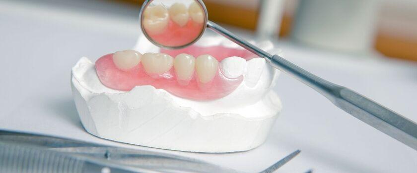 Protezy zębowe – konieczność czy zbytek!?