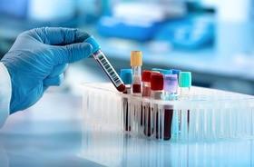 Magnez (Mg)  – badamy elektrolity we krwi. Norma, nadmiar, niedobór