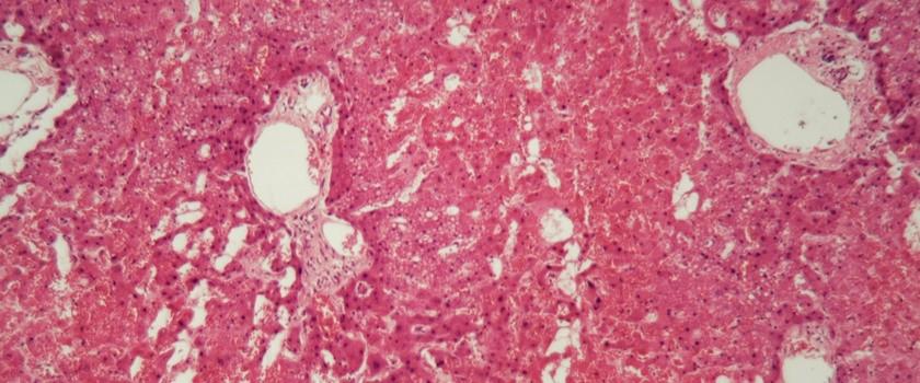 Amyloidoza (skrobiawica) – przyczyny, objawy, diagnoza i leczenie