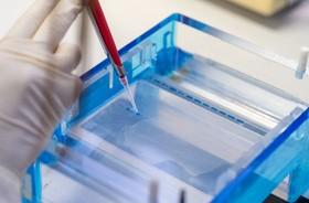 Proteinogram – badamy ilość białka w surowicy krwi. Normy, wskazania, interpretacja wyników